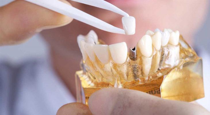 Зубные импланты Штрауман в Бресте